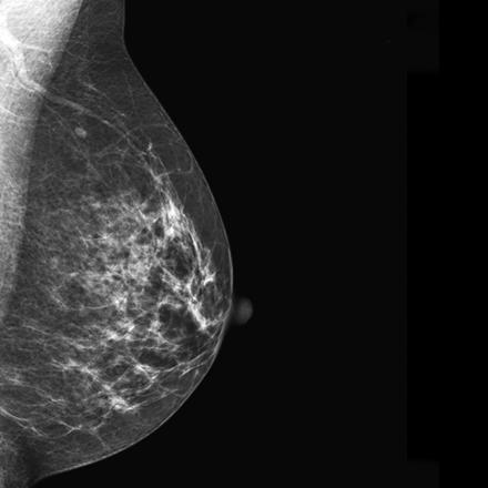 Digital Mammography Image