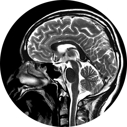 Brain & Spine Imaging Image