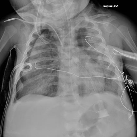 Pediatric Imaging Image