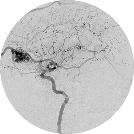 Angiography Image