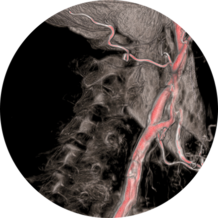 Interventional Radiology Image