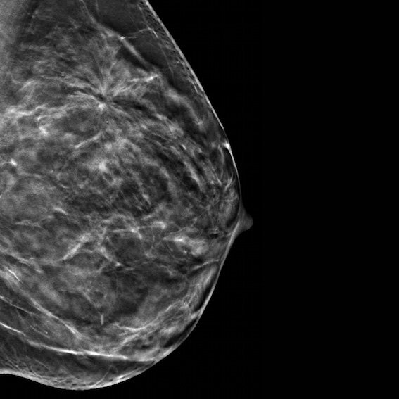 3D Mammography At New Jersey Imaging Network