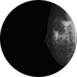 Breast Biopsy Image