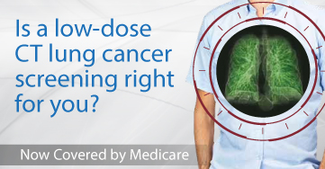 LDCT Lung Cancer Screening Campaign | Radiology Imaging