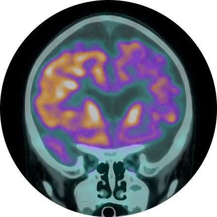 Brain Health Image