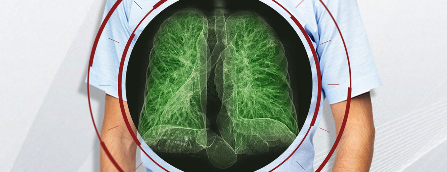 Low-Dose CT Lung Cancer Screening